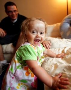 Identifying children living with Progeria