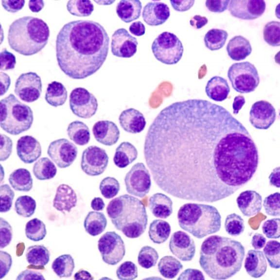 Multiple Myeloma Awareness: Bone marrow aspirate cytology of multiple myeloma, a type of bone marrow cancer of malignant plasma cells, associated with bone pain, bone  fractures and anemia.